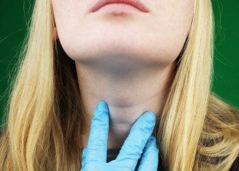 ipotiroidismo: cos'è, cause, sintomi, cure e dieta