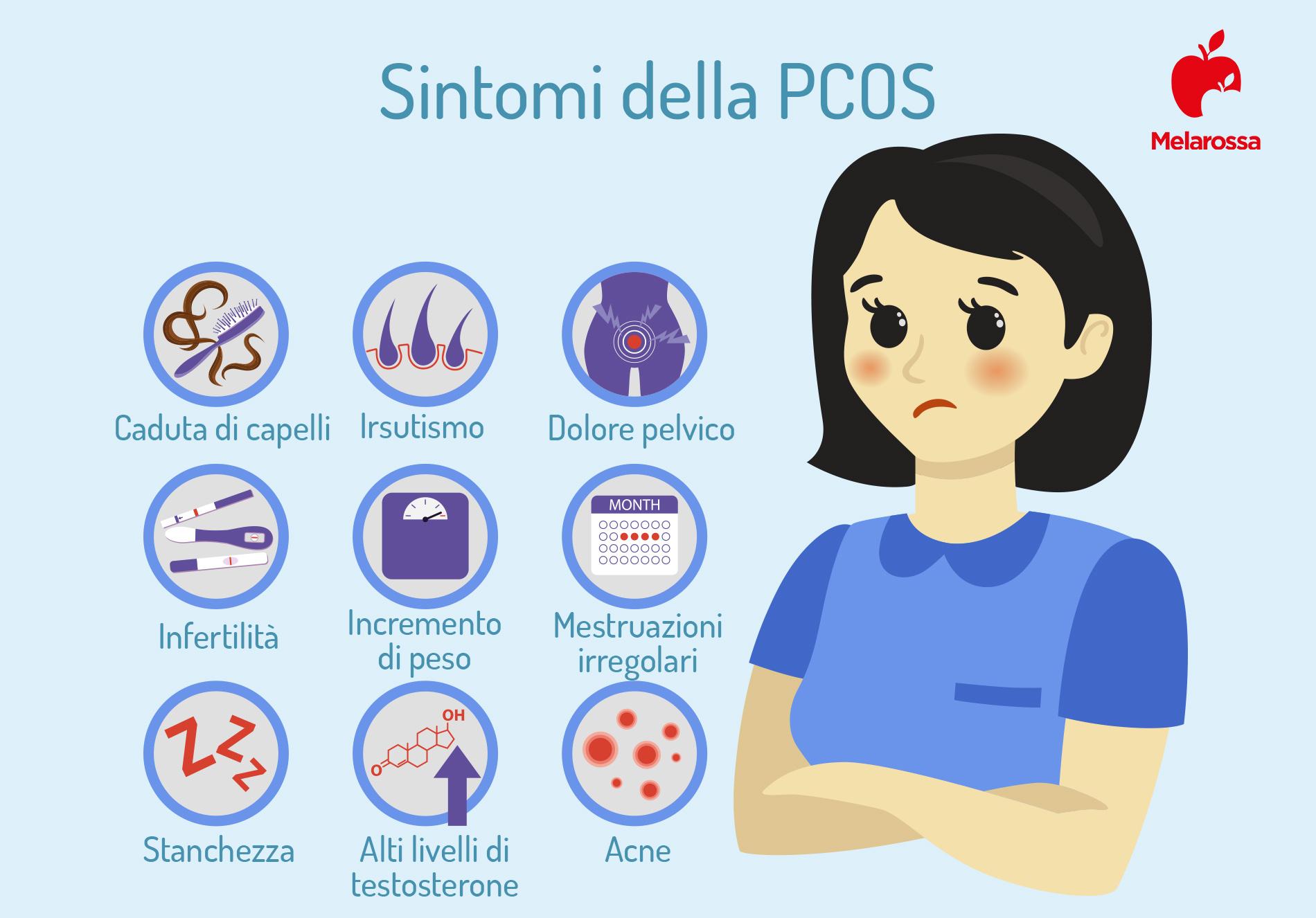 sindrome dell'ovaio policistico: sintomi