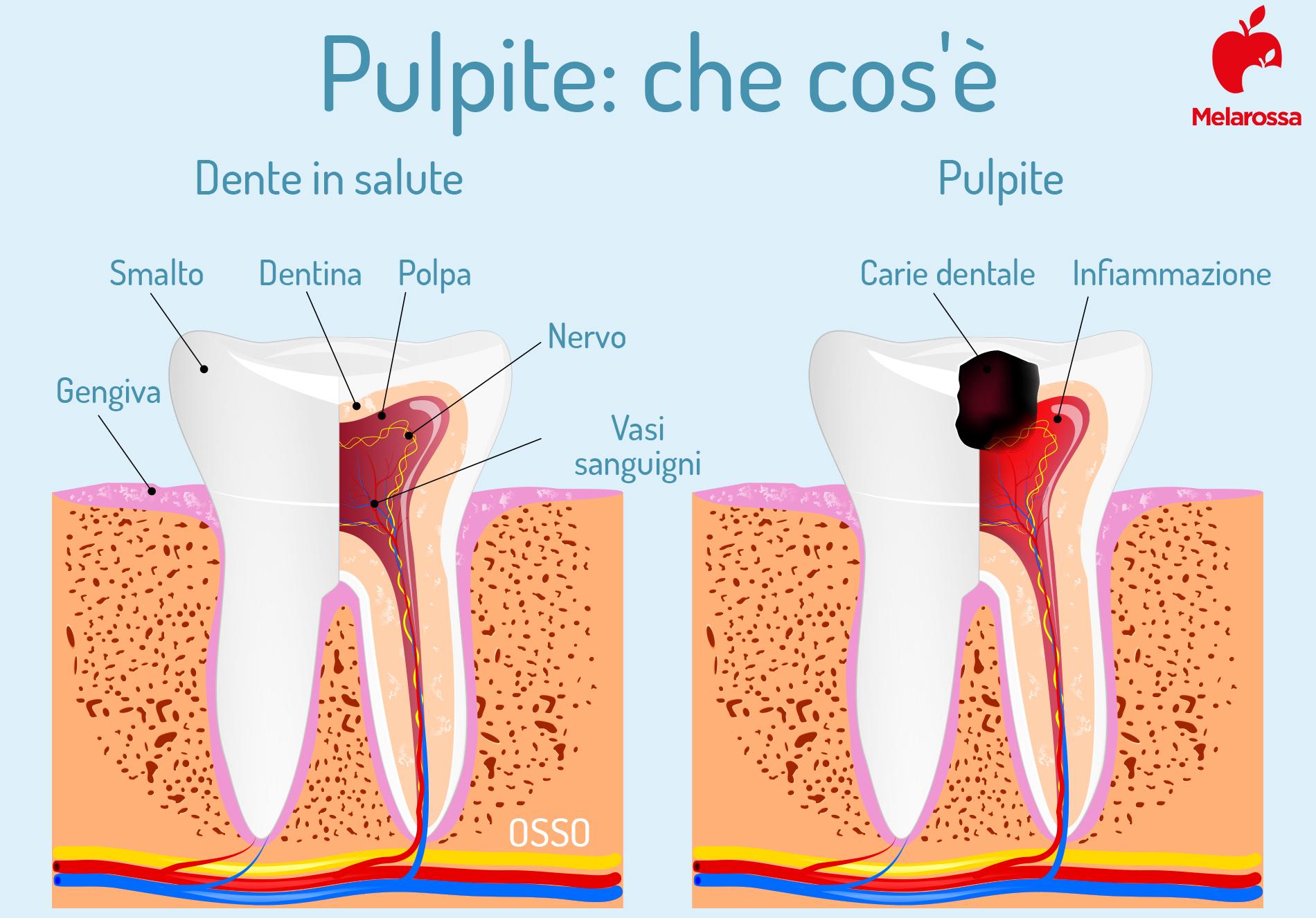 pulpite dentale: che cos'è