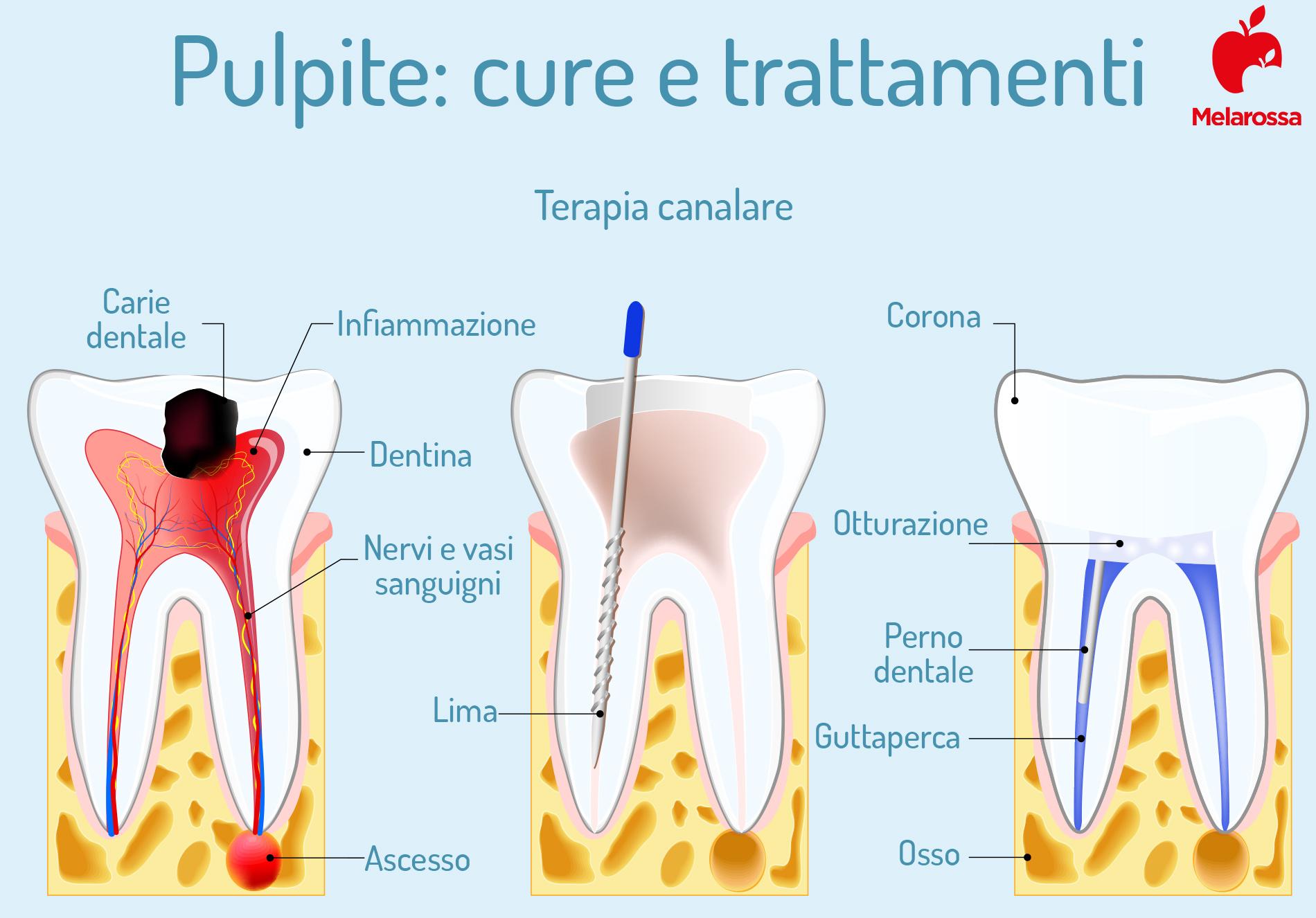Pulpite dentale: terapia canalare