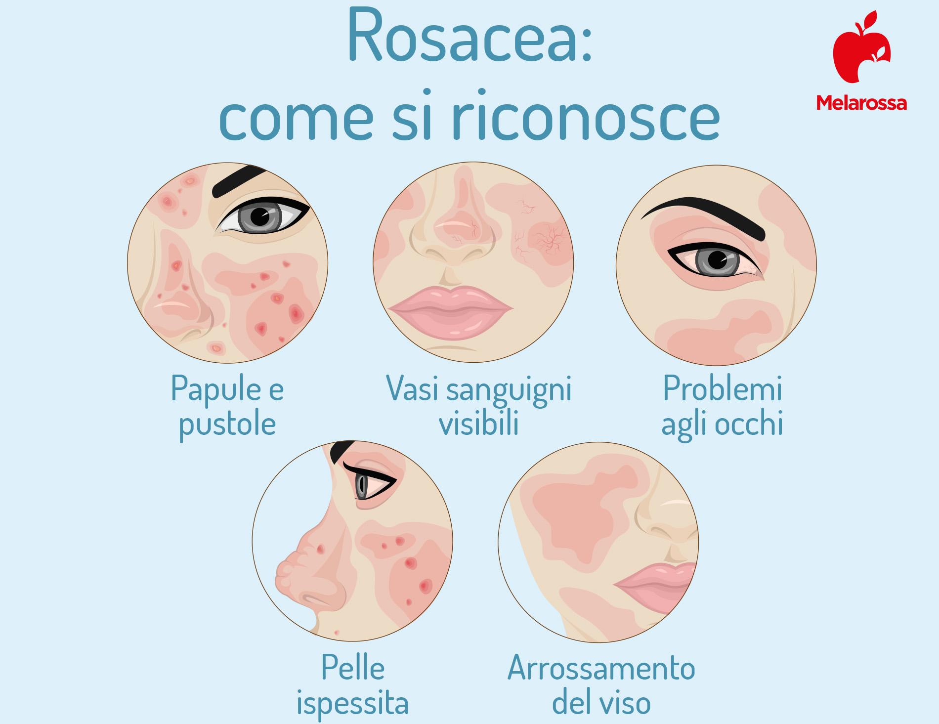 rosacea: come si riconosce
