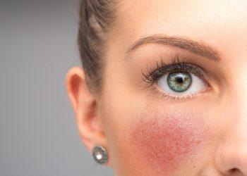 rosacea: cos'è, cause, sintomi e cure