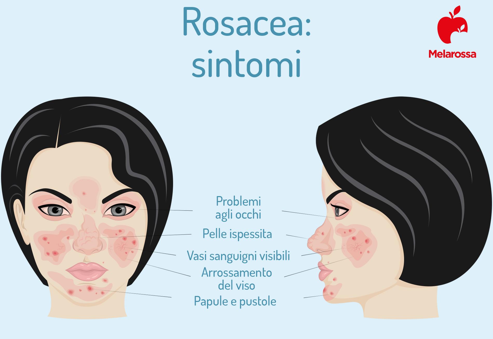 sintomi della rosacea