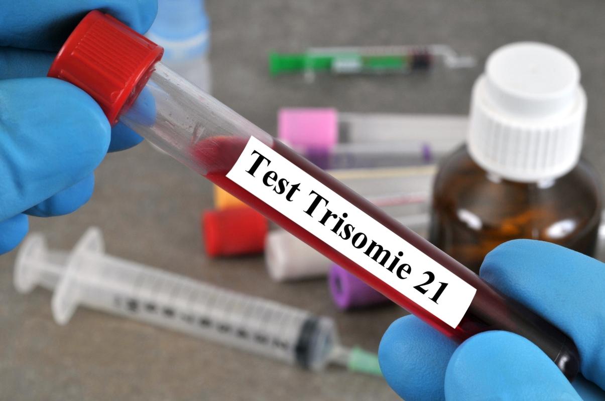 sindrome di Down: test da fare in gravidanza