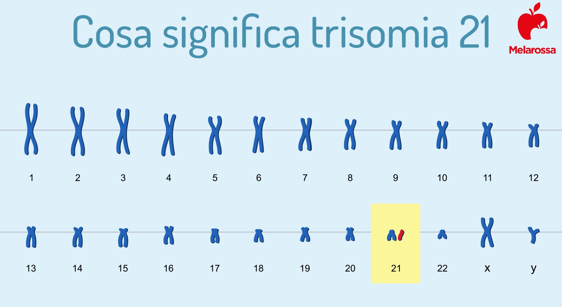 sindrome di Down e trisomia 21