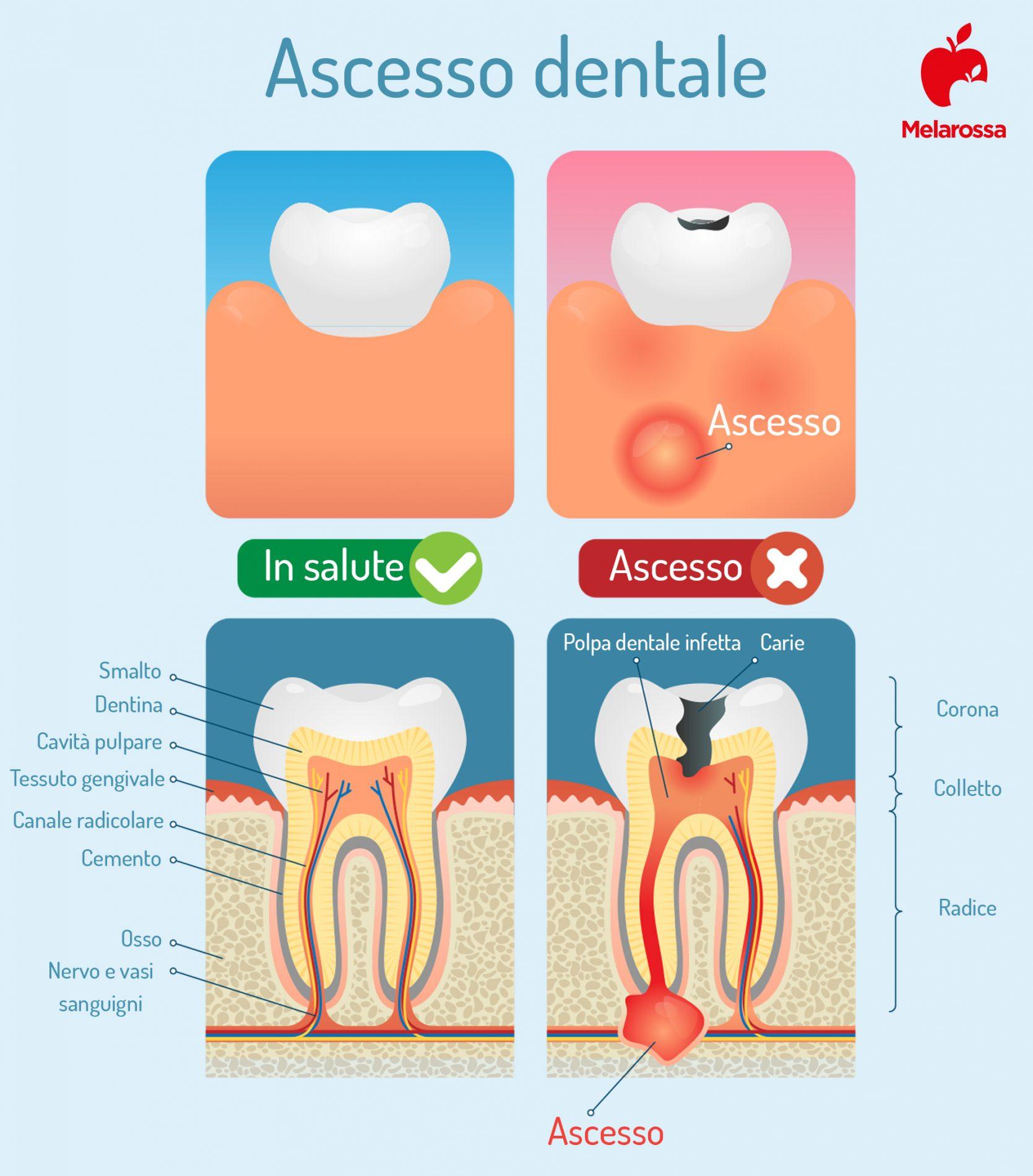 ascesso dentale, sintomi