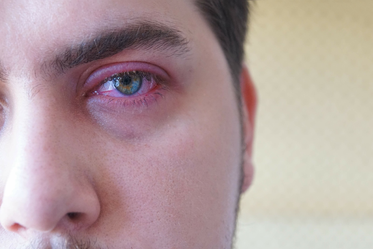 blefarite: complicazioni
