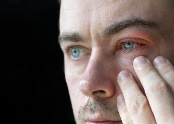 blefarite: cos'è, cause, sintomi e cure