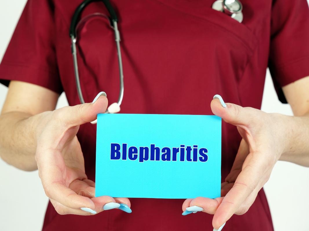 Blefarite: diagnosi