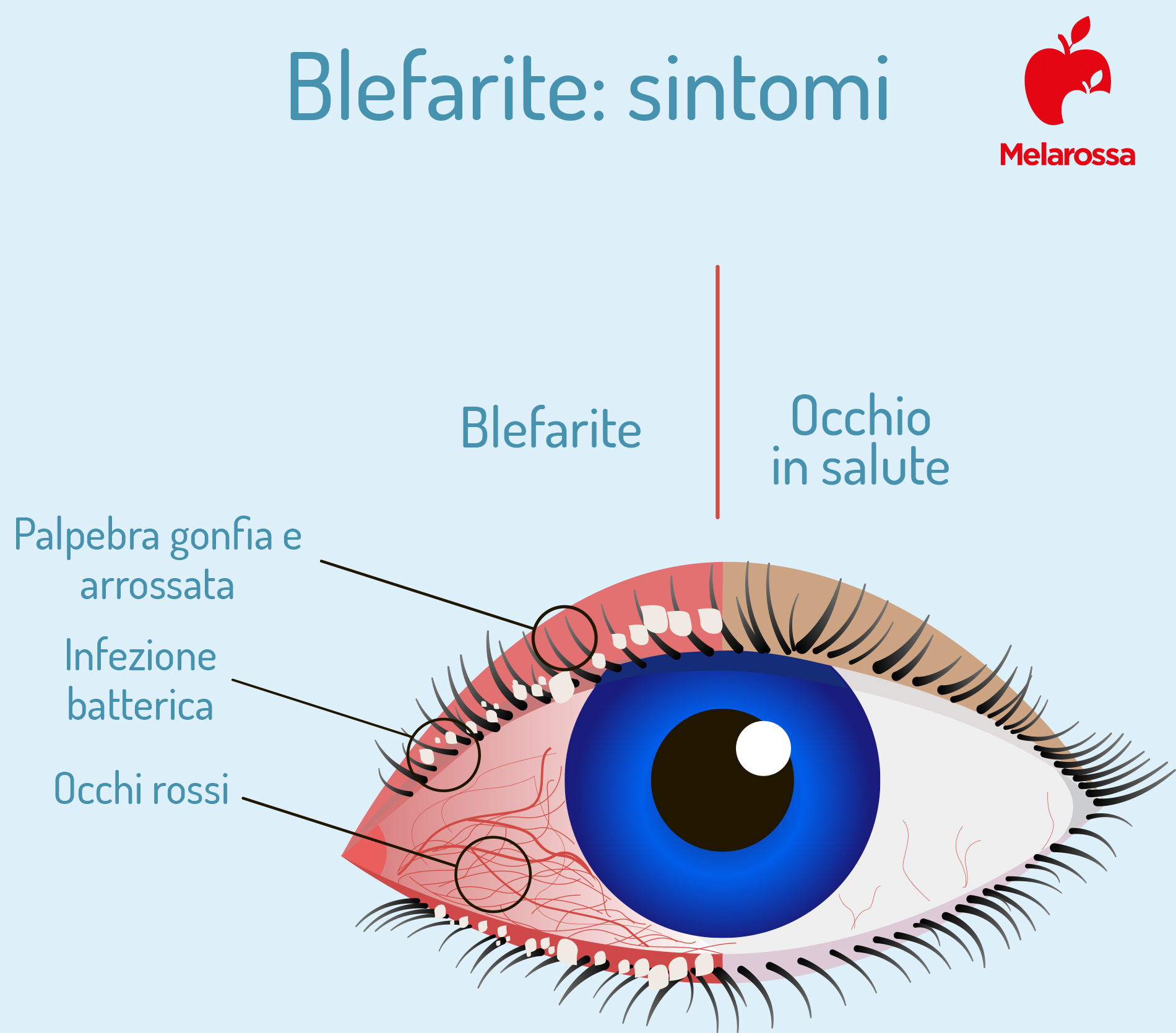 blefarite: sintomi