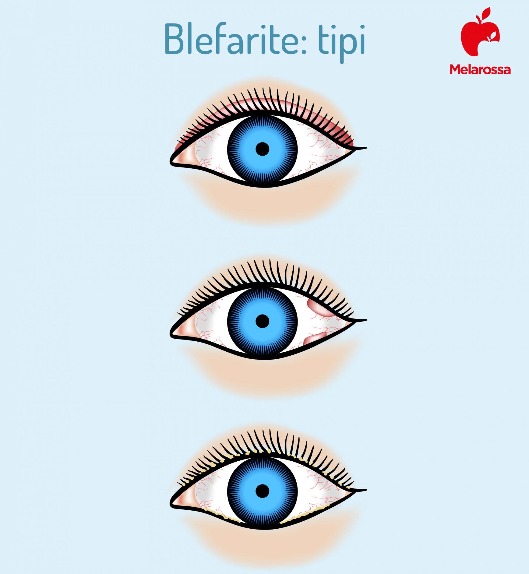 tipi di blefarite