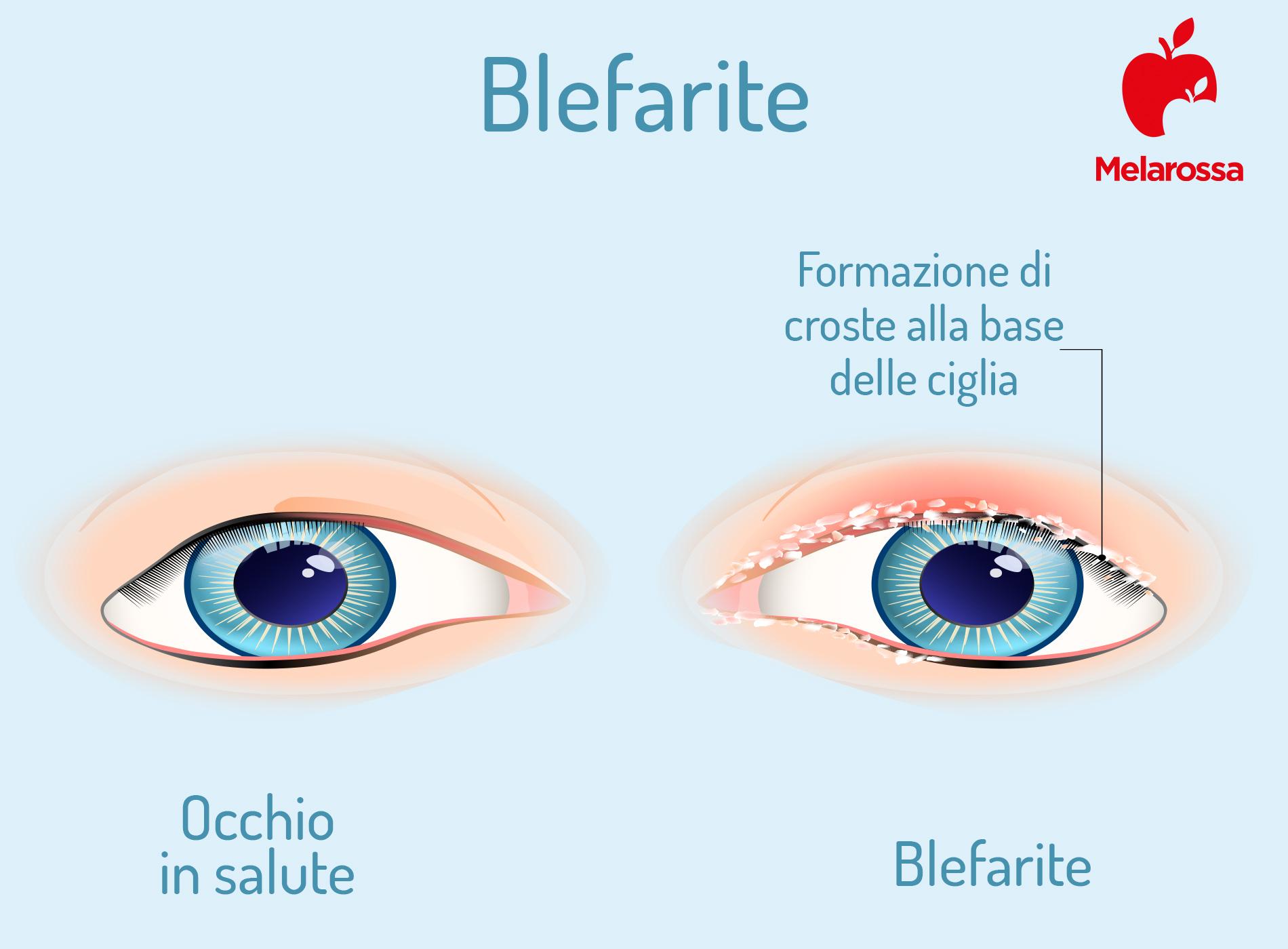 blefarite: che cos'è