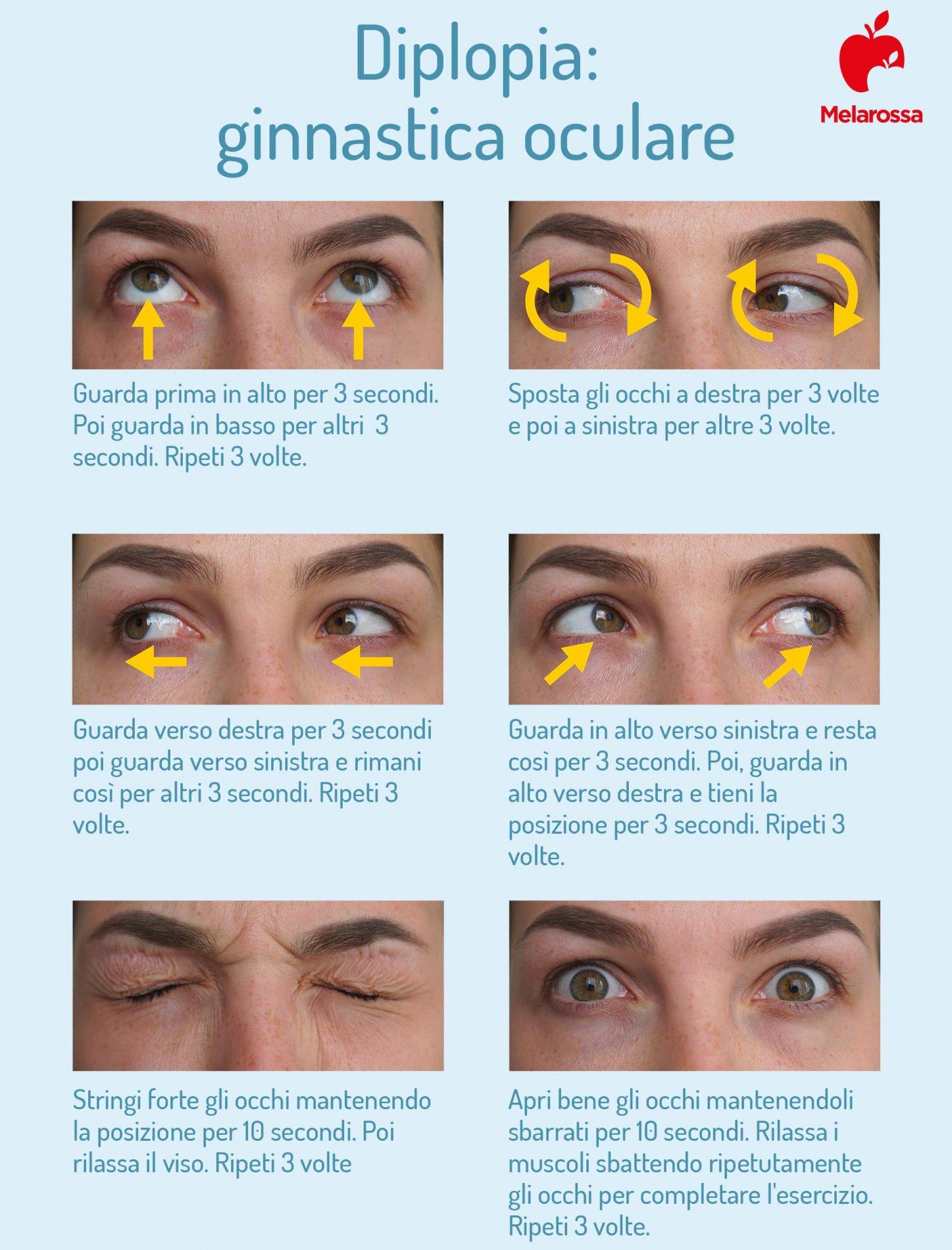 diplopia: ginnastica oculare