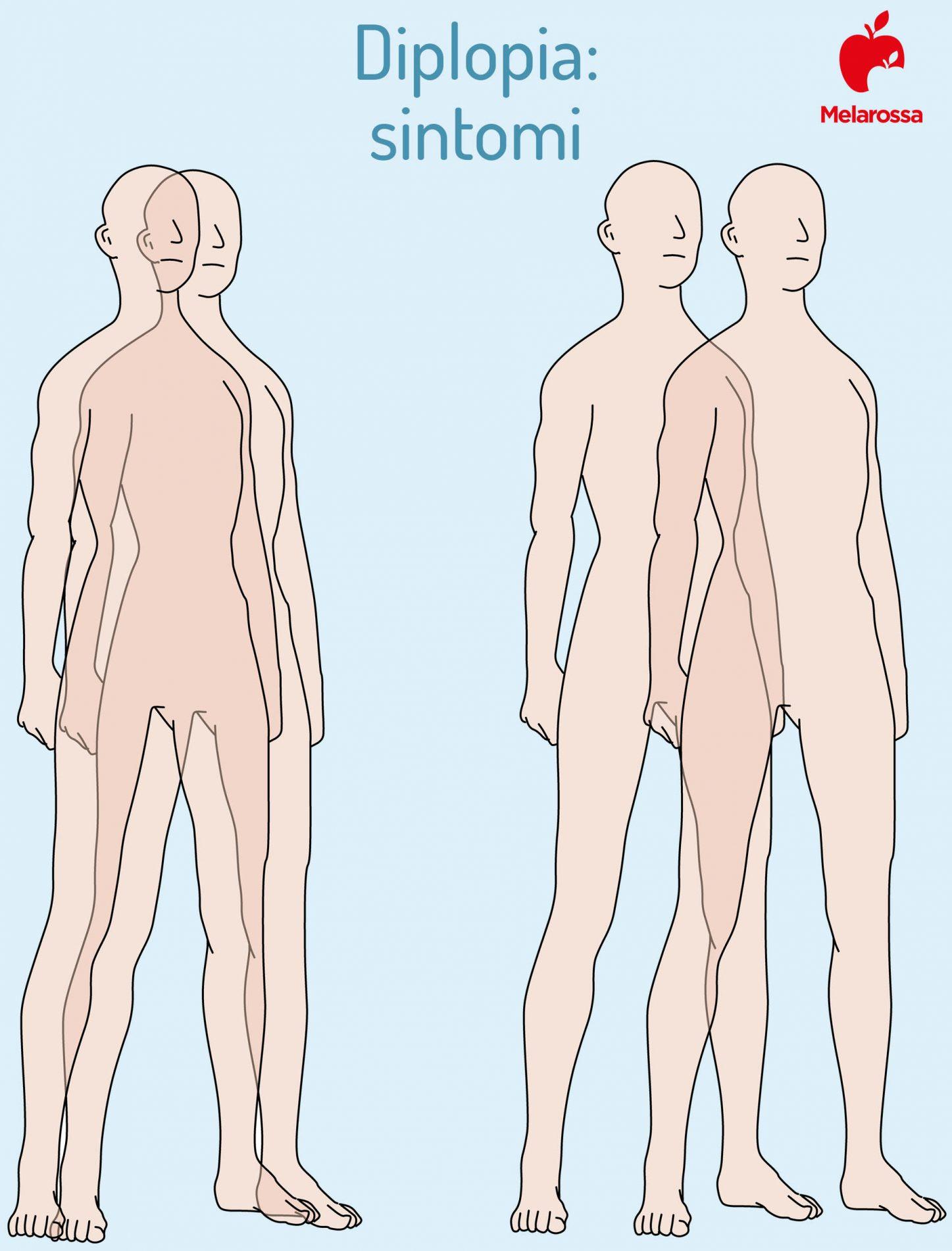 diplopia: sintomi