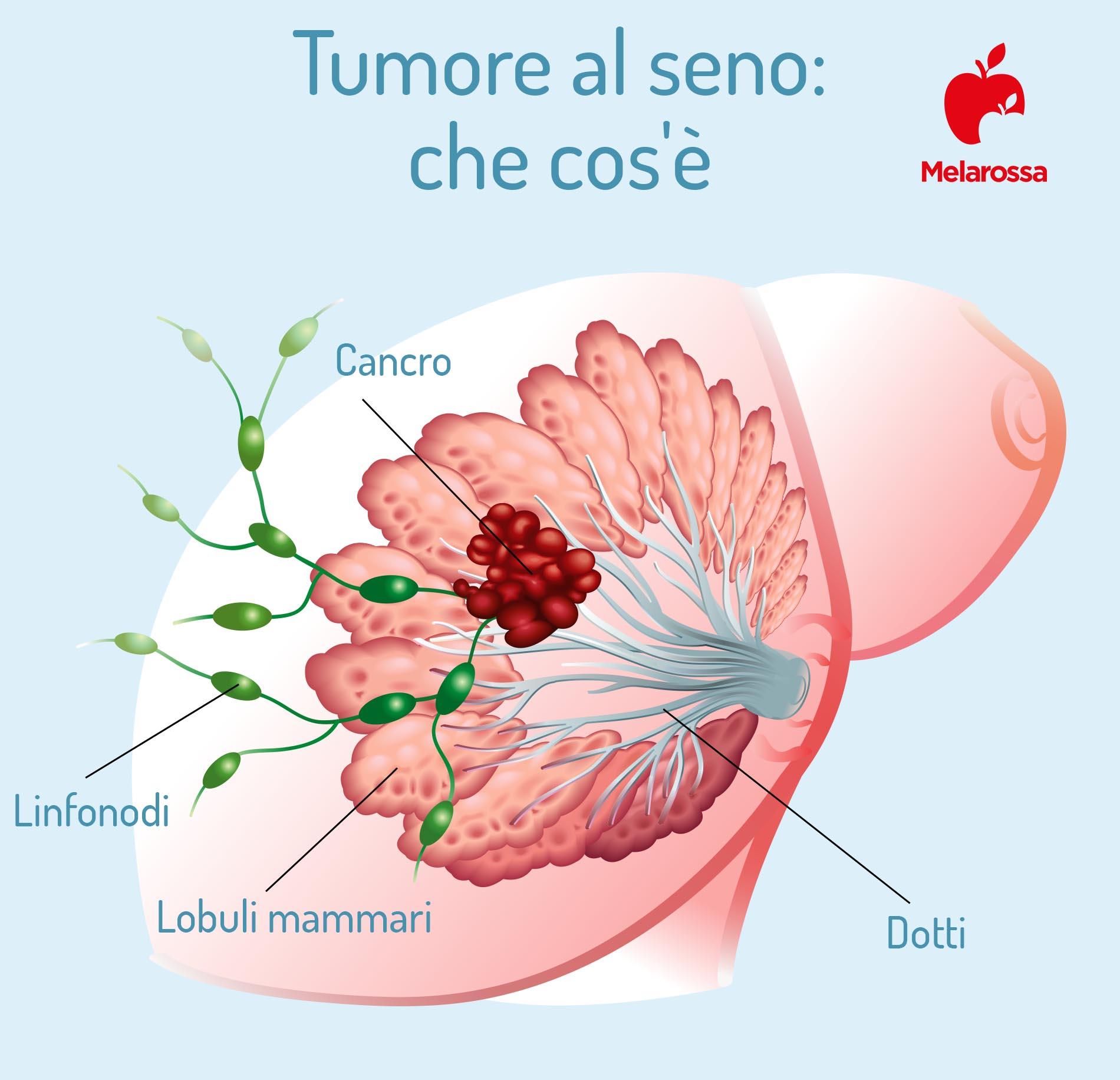 tumore al seno: che cos'è