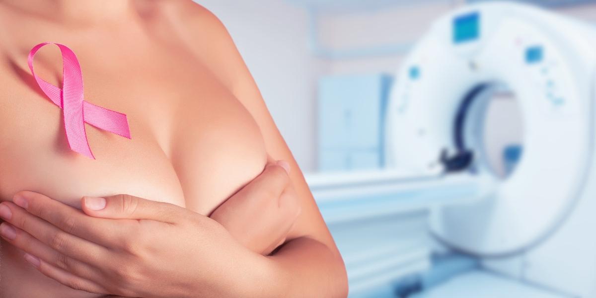 tumore al seno: cure